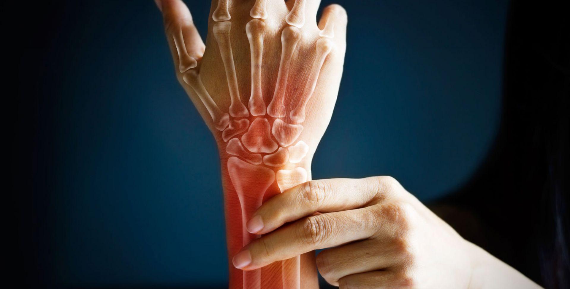 8 habitos que tienes a diario y perjudican enormemente tus huesos